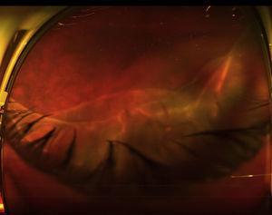Fotografía de campo ultra-amplio en un ojo derecho obtenida con un Optos Daytona (Optos, Dunfermline, Reino Unido), que muestra un desprendimiento de retina regmatógeno secundario a un desgarro gigante superior. La retina superior se encuentra cubriendo la papila y la mácula, por lo que estas estructuras no son visibles en la fotografía.