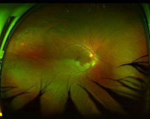 Fotografía de campo ultra-amplio de un ojo derecho obtenida con un Optos Daytona (Optos, Dunfermline, Reino Unido) en la que se observa una oclusión de rama arterial de retina temporal inferior. Estas imágenes abarcan 160 grados horizontalmente. Verticalmente, el campo se ve reducido por la imagen de las pestañas del paciente, que son los artefactos que se observan en la porción inferior de la fotografía.