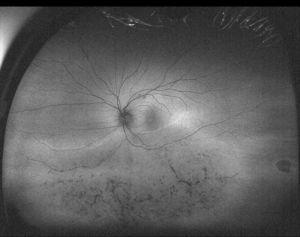 Fotografía de campo ultra-amplio en modalidad de autofluorescencia del mismo ojo mostrado en la figura 5 con diagnóstico de retinitis pigmentosa sectorial, en la que se resaltan las alteraciones pigmentarias en la retina inferior.
