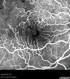 Angiografía con fluoresceína obtenida con el Heidelberg Spectralis (Heidelberg Engineering, Heidelberg, Alemania) de un campo de 30 grados centrado en la fóvea de un caso de oclusión de rama venosa temporal superior isquémica, en la que se observa cierre capilar y alteraciones vasculares en el cuadrante temporal superior de la mácula.