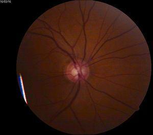 Ejemplo de sospechoso de padecer glaucoma.