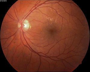 Ejemplo de edema macular sin significación clínica.