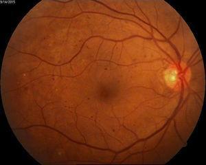 Ejemplo de retinopatía diabética con características de alto riesgo.