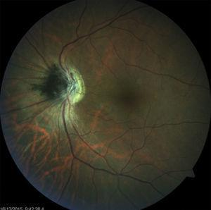 Fundus photograph showing an optic disk melanocytoma.