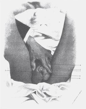 """El sexo aparece como un hecho físico, sustancial, inconmovible. """"Guadalupe Vargas"""" en La Gaceta Médica de México, 1980."""