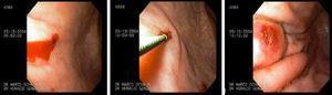 Lesión de Dieulafoy: sangrado activo babeante (IB), sometida a método de inyección.