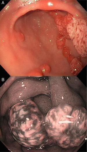 A y B)Pólipos hiperplásicos en el estómago. Visión endoscópica con luz blanca y NBI.