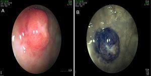 A y B)Tumor neuroendocrino en el antro gástrico en un paciente con historia de dolor abdominal crónico.