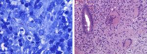 (a) Ziehl–Nielsen stain that shows numerous acid-fast bacilli (100×). (b) Hematoxiline-Eosine stain with granulomatous colitis with Langhans giant cells (20×).