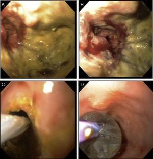 A y 2B. Muestran la oclusión de la luz secundaria al tumor. Se logra franquear la obstrucción tumoral hasta colon transverso. C y D muestran la introducción y expansión del dilatador de la luz intestinal.