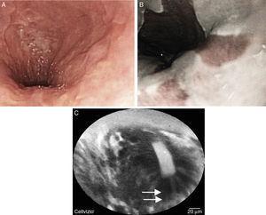 A-B) Imagen endoscópica de esófago de Barrett con mucosa asalmonada; se corrobora con cromoendoscopia digital con NBI. C) Endomicroscopia confocal con sonda que muestra mucosa con arquitectura vellosa uniforme; el epitelio es plano. Se visualizan células caliciformes (flecha).