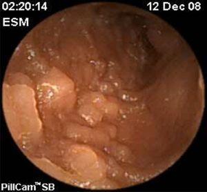 Hiperplasia linfoide.