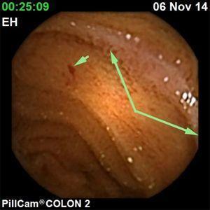 Hemangioma de íleon terminal y angiectasia.
