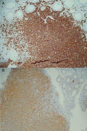A) La inmunohistoquímica evidenció positividad para CD20/BCL2. B) La inmunohistoquímica evidenció positividad para ciclina D1.