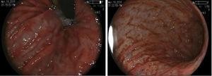 Mucosa de aspecto erosivo y puntilleo hemorrágico, con imagen en piel de serpiente tanto en cuerpo como antro gástrico, duodeno con zonas de epitelio aplanado, mucosa eritematosa y lesiones nodulares violáceas.