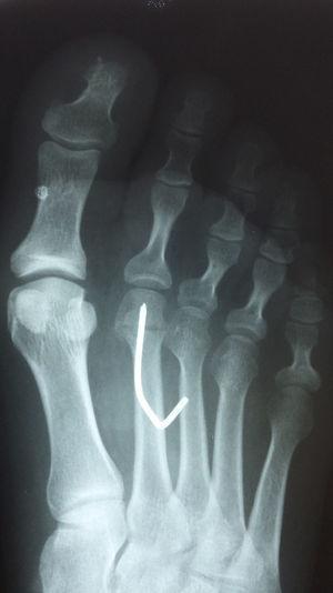 Imagen radiológica postoperatoria tras la realización de la osteotomía capital.