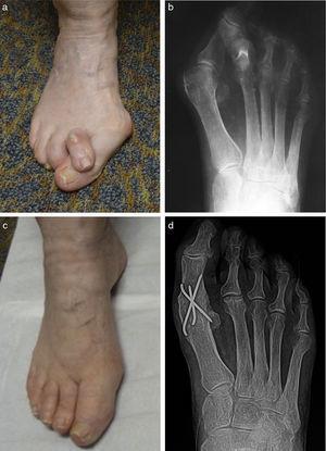 a) Apariencia preoperatoria clínica y b) radiológica de un paciente anciano con deformidad en hallux abducto valgus y 2.o dedo en supraaducción. c) Aspecto clínico y d) radiológico 6 meses después de la cirugía con artrodesis de la 1.a MTF y reparación del dedo en garra. Se realizó también una resección parcial de la segunda cabeza metatarsiana.