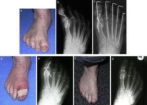 a) Apariencia preoperatoria de un paciente con hallux varus y cambios artríticos en la articulación interfalángica del hallux. b,c) Radiografías postoperatorias inmediatas después de la fusión de la 1.a MTF y artroplastia de la articulación interfalángica. d,e) Apariencia clínica y radiológica postoperatorias a los 6 meses con una no-unión de la 1.a MTF. f,g) Apariencia clínica y radiológica del pie a los 6 meses de haber retirado las agujas con una no-unión asintomática.