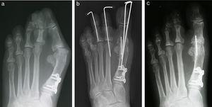 (a) A patient with recurrent hallux valgus deformity with a large intermetatarsal angle. (b) Immediate postoperative appearance and (c) 3 months postoperative. Notice the reduction in the intermetatarsal angle despite the fact that no osteotomy was performed as part of the revisional surgery.