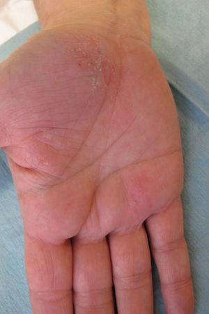 Detalle de la palma de la mano derecha.