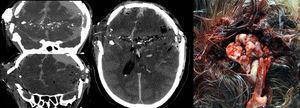 Extensa lesión cerebral secundaria a traumatismo penetrante por arma de fuego, que además produce descompresión ósea y extrusión de contenido encefálico. LET incluyendo compresión elástica craneal que progresó a muerte encefálica, siendo el paciente donante multiorgánico.