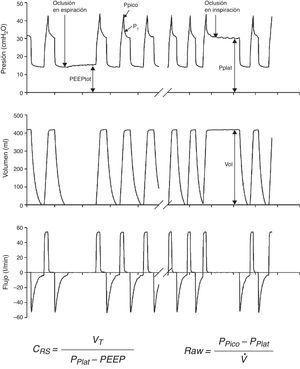 Cálculo de la compliancia y resistencia del sistema respiratorio a partir de los registros de presión, volumen y flujo de un ventilador mecánico.