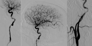 Disección de arteria carótida izquierda. La angiografía muestra CAD extracraneal en el segmento cervical (a, proyección extracraneal, y b, proyección intracraneal). Posterior al procedimiento, se muestra recanalización de la CAD (c).