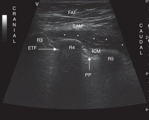 Ultrasound of the chest wall showing the planes visualized in the lateral chest. SAM: serratus anterior muscle; ICM: intercostal muscles; R3: third rib; R4: fourth rib; R5: fifth rib; PP: parietal pleura; ETF: enthoracic fascia; FAT: subcutaneous fat; * denotes hydrodissection of the interfascial plane with the anesthetic solution inside this space.