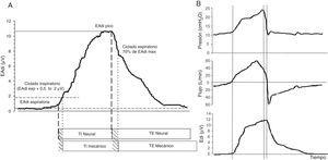 Señal EAdi y curvas respiratorias características durante la ventilación en NAVA. A. Señal EAdi. El inicio de la inspiración viene dado por el aumento en la actividad de la EAdi (primera línea discontinua) partiendo de la actividad espiratoria que en condiciones normales es 0. En el momento en que la EAdi alcanza un valor umbral (primera línea de puntos) el ventilador comienza la asistencia hasta que la EAdi desciende a un 70% del valor máximo (segunda línea de puntos). El tiempo inspiratorio neural comprende el periodo entre las 2 líneas continuas, finalizando cuando la EAdi alcanza su valor máximo. El tiempo ventilatorio mecánico comprende el periodo entre las 2 líneas discontinuas (ciclado inspiratorio y espiratorio). Nótese que, aunque mínimo, existe un desfase en el tiempo entre los tiempos neurales y mecánicos debido a los criterios de ciclado impuestos. En B, las curvas de presión, flujo y EAdi de un ciclo muestran la perfecta sincronía inspiratoria (primera línea discontinua) y el ciclado espiratorio que se produce inmediatamente iniciado el tiempo neural del paciente, en relación con el cese del esfuerzo inspiratorio. Al igual que en PAV, la presurización es gradual y en NAVA sigue la morfología de la fase inspiratoria de la EAdi. El nivel de NAVA es de 1 pudiendo observarse que la presión final inspiratoria alcanzada es de 22cmH2O que corresponde a la EAdi (=12)×nivel NAVA (=1)+el nivel de PEEP (=10). Adaptada de Suárez-Sipmann et al.30.