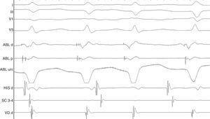 El estudio electrofisiológico permitió identificar potenciales de Purkinje en las zonas lateral media y septal de ventrículo izquierdo, que se ablacionaron con radiofrecuencia.