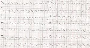 Electrocardiograma que muestra un bloqueo de rama derecha con elevación del segmento ST de V3 a V4.