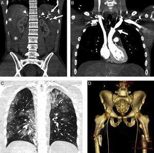 Complejo hipoperfusión-shock. Varón de 24 años. Accidente de automóvil sin cinturón de seguridad con salida del habitáculo. Signos de shock hipovolémico. TCCC con reformateos multiplanares (MPR) coronales del abdomen. A) Abdomen con hemoperitoneo (*) por estallido esplénico (flechas) e hiperrealce de ambas suprarrenales. B) MPR coronal de tórax/mediastino con lesión traumática de aorta ascendente, sin evidencia de hematoma mediastínico (flecha). C) MPR coronal de tórax/parénquima: múltiples focos de contusión pulmonar. D) Reformateo tridimensional de la pelvis: fractura de ambos fémures proximales (nótese el calibre reducido de aorta y arterias ilíacas).