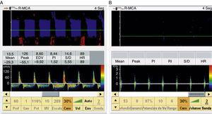 Arteria cerebral media sonorizada a través de la ventana temporal con patrón de flujo diastólico invertido (A) y espigas sistólicas (B), con pico sistólico menor de 50cm/s, característico de parada circulatoria cerebral.