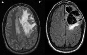 A) RM en secuencia T2 antes de la craniectomía descompresiva. B) RM en secuencia T2-Flair postintervención.