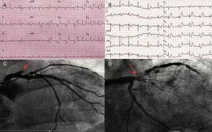 ECG y coronariografías de los casos 1 (A y C) y 2 (B y D) que muestran patrón ST-T de Winter y oclusión/suboclusión de ADA ostial.