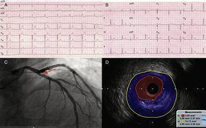 ECG con dolor torácico previo (A) y posterior a intervencionismo (B). Coronariografía que muestra lesión angiográficamente límite en ostium de ADA (C), significativa por IVUS (D).