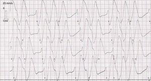 Registro de monitorización electrocardiográfica del paciente. Se observa conducción intraventricular.