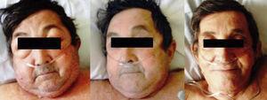 Imágenes del paciente al ingreso (izquierda), tras 6h de tratamiento (centro) y a los 5 días (derecha). Fuente: fotografías tomadas con el permiso expreso del paciente para su publicación en revista científica.