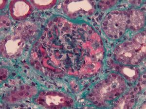 Renal Biopsy (green masson tricromium stain) 400× – marked glomerular capillary stasis – glomerular thrombus.