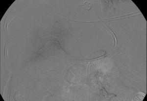 Imagen de arteriografía que muestra repermeabilización parcial de vena porta. Imagen obtenida durante intervencionismo radiológico de control posterior a tratamiento fibrinolítico locorregional.