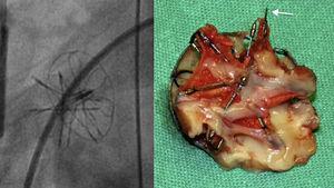 Fractura de uno de los anillos metálicos del ATRIASEPT (flecha). En la imagen de la izquierda, fluoroscopia intraoperatoria del dispositivo que no visualiza correctamente la solución de continuidad del anillo metálico.