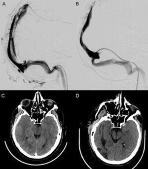 A) Flebografía que muestra defecto de repleción en el seno longitudinal superior. B) Flebografía con ausencia de defectos de repleción en su interior, con adecuado drenaje a través del seno transverso izquierdo. C) TC craneal: signos de hipertensión intracraneal (borramiento de surcos de la convexidad bilateral, disminución del tamaño de las cisternas basales, aumento del eje anteroposterior del mesencéfalo). D) TC craneal al alta con mejoría de los signos indirectos de hipertensión intracraneal.