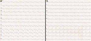 A) Electrocardiograma de 12 derivaciones al segundo día de la aparición del cuadro, con un intervalo QTc de 680ms. B) Electrocardiograma realizado el 10.° día de evolución, QTc de 475ms, pero con persistencia de la inversión de ondas T.