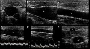 Ultrasonographic (US) appearance of the vessels. (A) Vessels in short axis, v: vein; a: artery; (B) vein (v) in long axis; (C) artery (a) in long axis; (D) vein flow demonstrating phasicity at spectral Doppler; (E) arterial flow demonstrating pulsatility at spectral Doppler; (F) differences between a superficial vein (sv, above deep fascia and muscle) and a deep vein (dv).