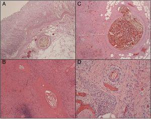 Histopatología: cristales de colesterol en el interior de la luz de las pequeñas arteriolas. A) Gástrico. B) Esplénico. C) Páncreas. D) Piel (tinción hematoxilina-eosina, ×10).