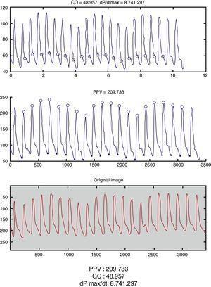 Captura de la app Capstesia (GalenicApp®, Vitoria-Gasteiz, España), en la que se pueden observar los cálculos hemodinámicos obtenidos a partir de la fotografía de una presión arterial invasiva que figuran en la parte inferior de la imagen.