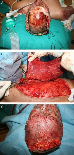 (A) Young male sustaining a flame burn after a car crash. Note the exposed bone. (B) Latissimus dorsi flap being harvested based on thoracodorsal artery via the subscapular artery. (C) The important scalp defect was covered and grafted. (Photos courtesy of Dra. Lagares Borrego).