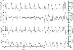 Registro de presión en la vía aérea, presión esofágica, flujo y volumen, en ventilación asistida controlada por volumen en 2 pacientes (izquierda y derecha). Presión en la vía aérea el inicio de la inspiración es pasivo, no hay descenso de la presión que indique esfuerzo respiratorio (←). Durante la fase de pausa inspiratoria la morfología y amplitud cambia de unos ciclos a otros (←). Flujo inspiratorio es constante, el flujo espiratorio tiene oscilaciones al inicio de la espiración mecánica, que habitualmente reflejan esfuerzos inspiratorios (←). Presión esofágica refleja un aumento de presión intratorácica al inicio de la inspiración mecánica seguido de un descenso posterior, que refleja el esfuerzo del paciente (línea discontinua). La relación entre el ciclo mecánico y el esfuerzo es de 1/1 en un caso y variable en el otro (1/1 en el 90% del registro total, coexistiendo con 1/3 y 1/2). El desfase fue de 60 y 47ms o 21 y 14° (θ=Tin-Tim/Ttotm · 360). El tiempo inspiratorio del esfuerzo muscular es de 0,8-0,9s y cuando produce un doble disparo aumenta a 1,4s. La presión de oclusión en los primeros 100ms (P01) fue de 3,9 y 8,2cmH2O en los ciclos con doble trigger en un caso y 4,5 y 8,5cmH2O respectivamente en el segundo caso. Los parámetros relacionados con el esfuerzo inspiratorio: delta presión esofágica (Δpes) 11cmH2O, la integral presión tiempo (IPT) 1,6±0,3 y 2,5cmH2O·s, el primer paciente tenía derrame pleural no drenado, por lo que medimos la compliancia de la caja torácica durante la ventilación mecánica controlada (160ml/cmH2O) y calculamos el producto presión tiempo9 (área sombreada), considerando la presión de retroceso elástica de la pared torácica, en este caso la estimación del esfuerzo respiratorio es de 5,6cmH2O·s (96,2cmH2O·s/m) y en los esfuerzos con doble trigger de 12,5cmH2O·s. En el segundo caso: Δpes 16cmH2O, IPT 2,5cmH2O·s (54cmH2O·s/m) y en los ciclos con doble disparo de 17cmH2O·s (370cmH2O·s/m).