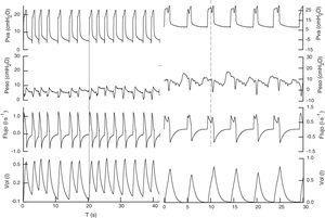 Registro de las señales (Pva, Pes, flujo, vol) en presión soporte de los 2 pacientes. En el primero de 18 con PEEP de 5cmH2O, mejorando la interacción con el respirador, el esfuerzo precede al ciclo mecánico (línea continua), con una frecuencia respiratoria de 22rpm, realiza un volumen corriente de 0,450l, sin signos de excesivo esfuerzo respiratorio y con un delta de presión esofágica menor de 5cmH2O. En el segundo caso con presión soporte de 25 y PEEP 6, mantiene una frecuencia respiratoria de 12rpm y un volumen corriente de 0,783l. En este el esfuerzo del paciente es posterior al inicio del ciclo mecánico, posiblemente el trigger del respirador es el cambio de presión (o flujo) provocado por el latido cardiaco. El esfuerzo del paciente (línea discontinua) produce un descenso en la fase de meseta de la presión de la vía aérea, que origina un reascenso del flujo inspiratorio.