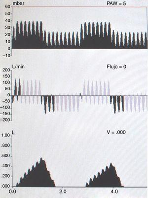 VPI conectado en serie en paciente bajo ventilación mecánica convencional en modo controlado por presión.